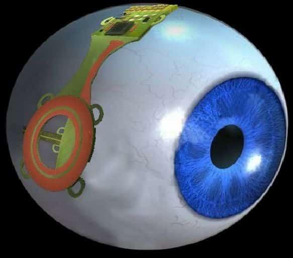 Bionic Eye, Image Credit : urdusky.com