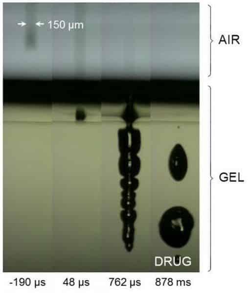 Gel Simulation of Laser 'Needle'