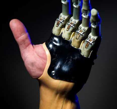 Prosthetic Finger, Image Credit : Touch Bionics