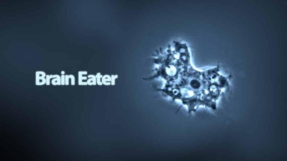brain-eating-amoeba