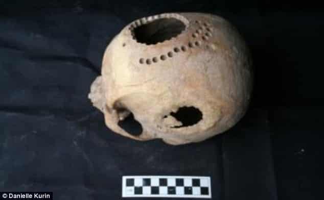 1,000-year-old Skull