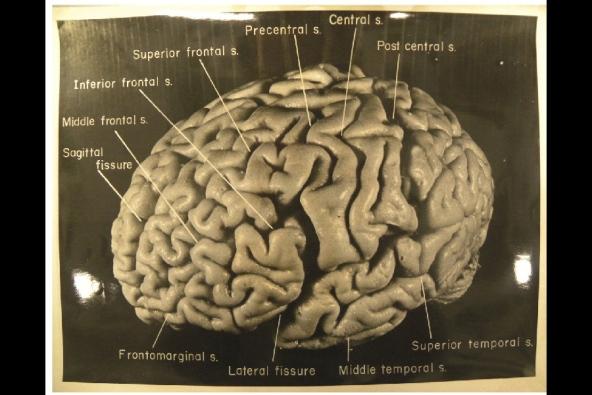 Einstein's Brain, Image - 1