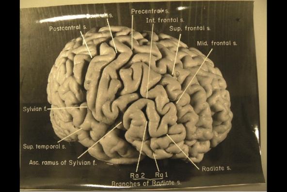 Einstein's Brain, Image-2