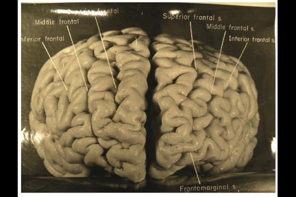 Einstein's Brain, Image-3